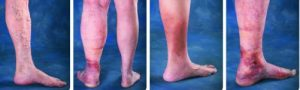 Leg Vein Ablation Venous Disease